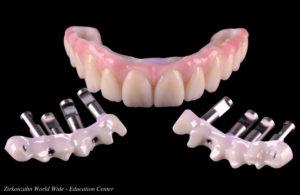 feste-implantate