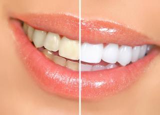 Wirkung Veneers auf Zähnen