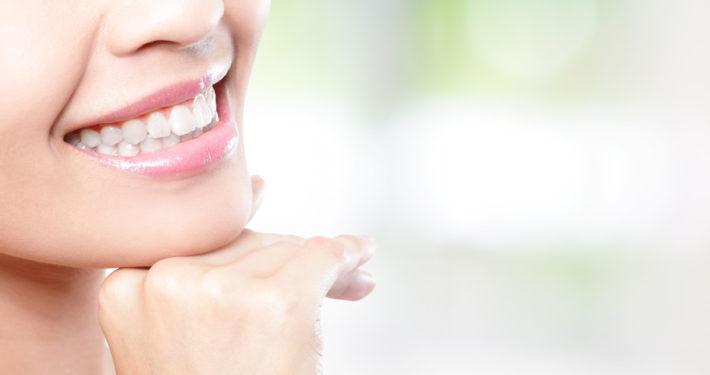 Schönere Zähne